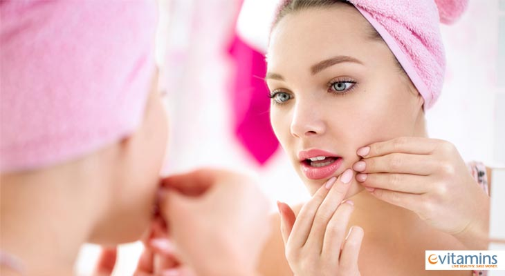 Acne can negatively impact confidence as well as the complexion.