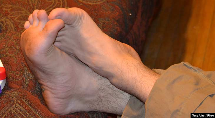 Gout is a painful and oftentimes debilitating condition that affects millions worldwide.  This article examines natural medicines and treatments for managing and treating gout.