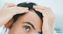 Common Causes of Hair Loss and How to Treat It